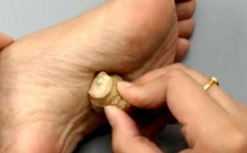 把生姜涂抹在脚底,这样做对身体会有什么好处呢?