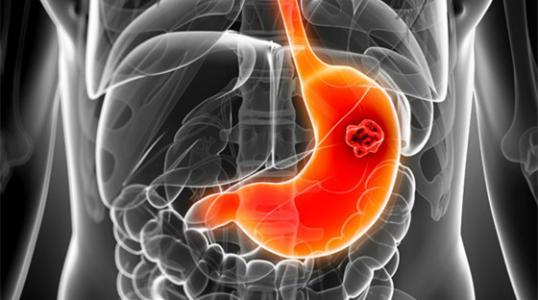 中医中胃病有哪些表现?方城中医院讲解以下几点