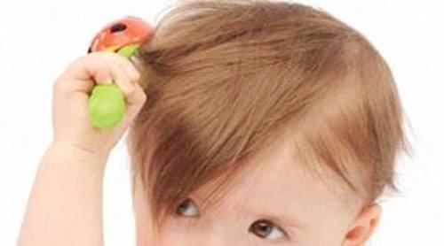 孩子头发稀少