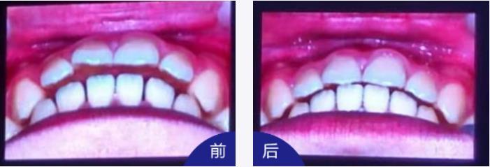 南部牙齿修正
