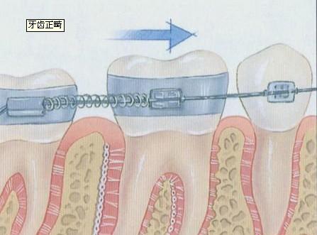 牙齿正畸图解