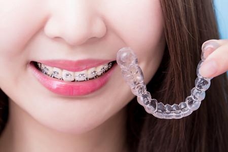 牙齿矫正期间要注意