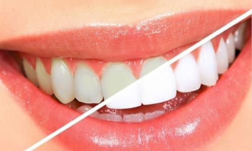 南部牙齿清洁诊所