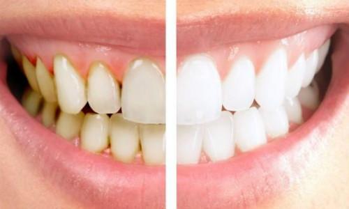 导致牙齿变黄原因