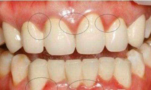 牙周炎治疗方法
