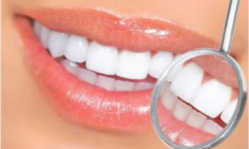 南部3D全瓷牙