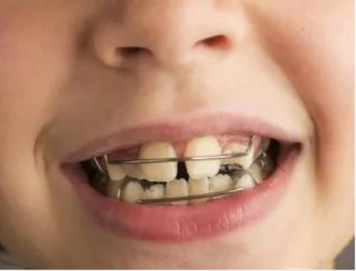 儿童牙矫正时期