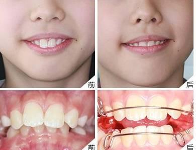 南部儿童牙矫正