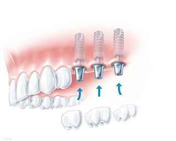 长期缺牙对口腔局部及全身健康会造成的不利影响