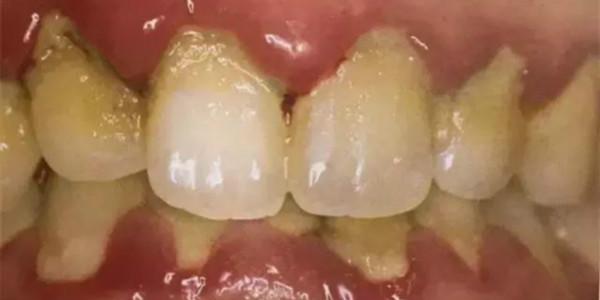 牙周炎产生原因