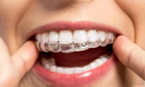 南部牙齿矫正手术