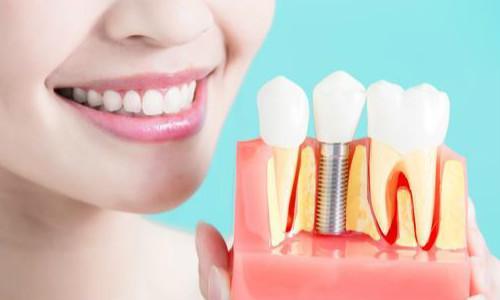 南部种植牙告诉您进行全牙种植时有哪些禁忌症!