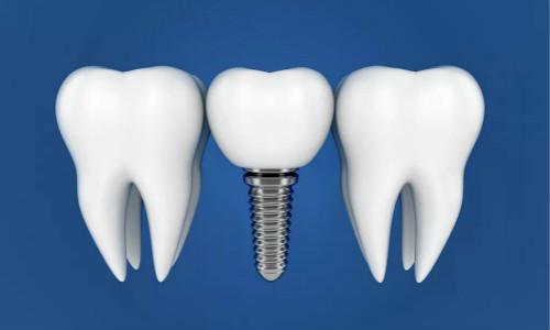 南部种植牙治疗