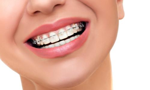牙齿矫正反弹原因
