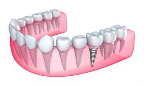 种植牙材料选择