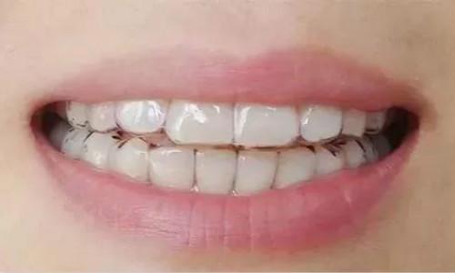 隐形牙齿矫正优点