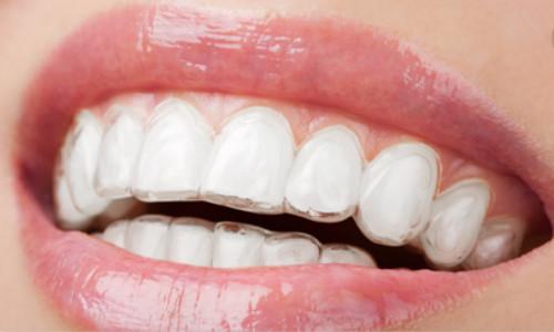 南部隐形牙齿矫正