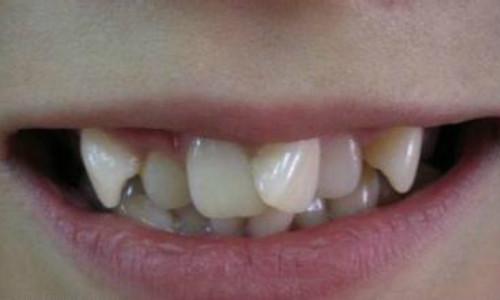 南部牙齿拥挤治疗