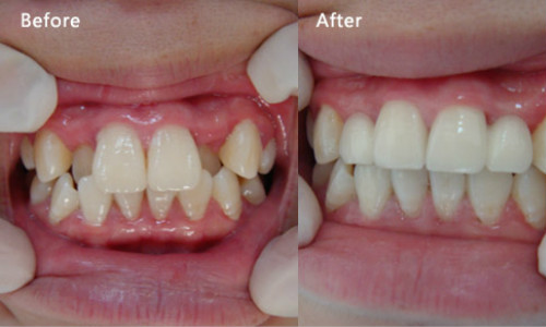 牙齿拥挤治疗