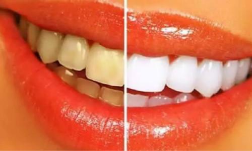 牙齿清洗效果