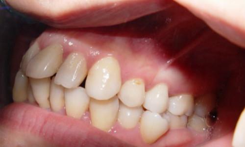 如何判断是否患有牙周炎以及牙周炎有哪些症状?!