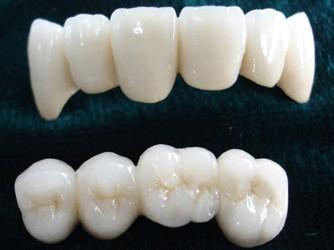 种植牙诊所