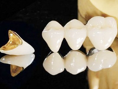 种植牙术后护理好坏影响其寿命