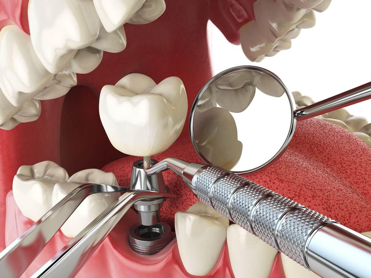 常规种植牙和微创种植牙两者有什么区别