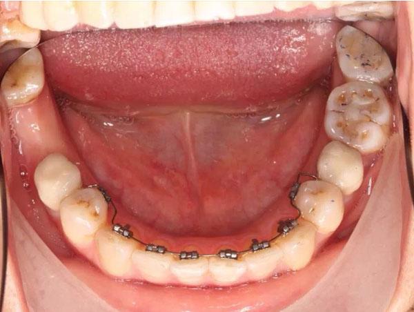 什么是种植牙?
