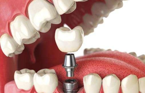 磨牙医治要注意什么