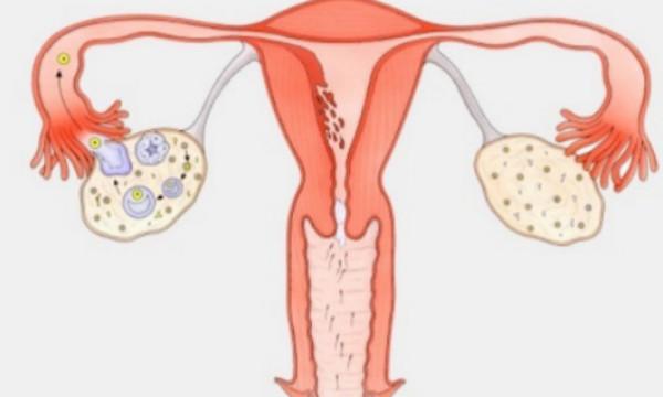 子宫内膜异位症预防