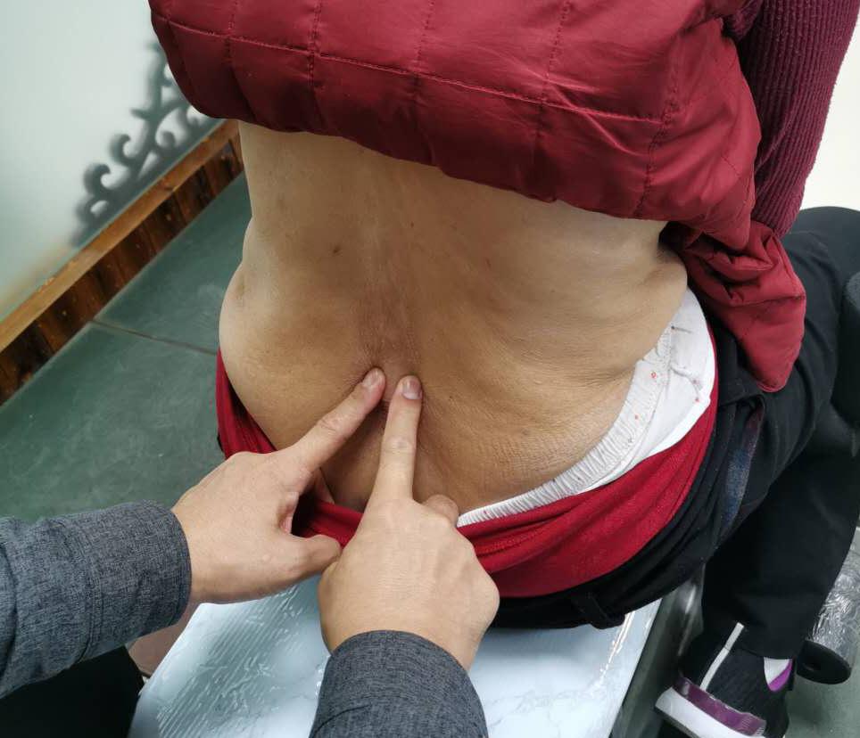 为什么说椎间盘突出诊治的方法总是在变化