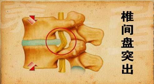 大部分的椎间盘突出患者病程时间都比较长