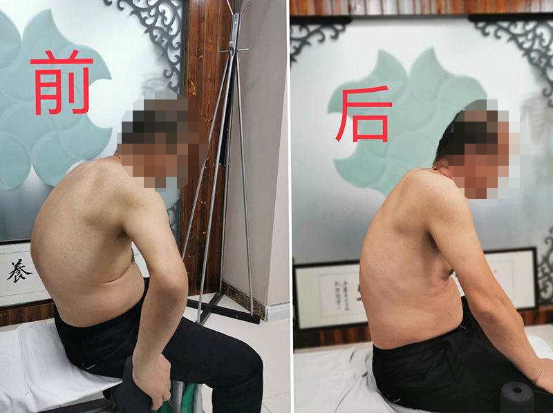 恒道养生正骨复位诊疗强直性脊柱炎对比图