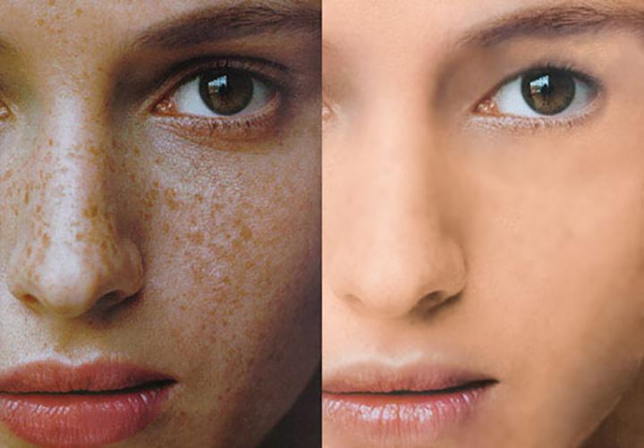 脸颊长斑是怎么回事 脸颊长斑的原因