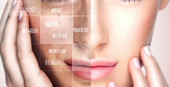 女人脸上的色斑怎么快速祛除 祛斑方式介绍