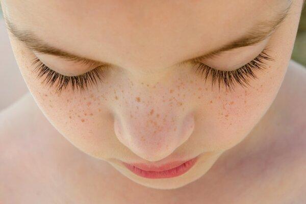 日常生活中怎么祛斑 美容祛斑方法分享