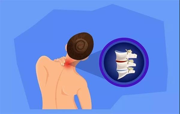 为什么颈椎会受到损伤?有哪些原因?