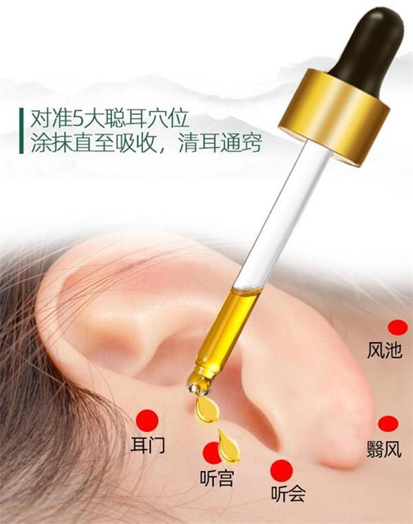 耳鸣会出现哪些情况?耳宝冷敷凝胶如何通过穴位处理?