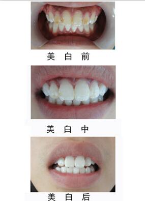 张家口牙齿美白