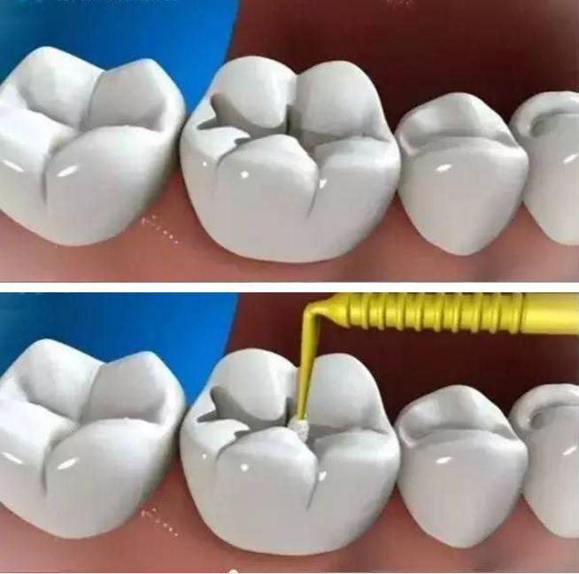 张家口专业镶牙