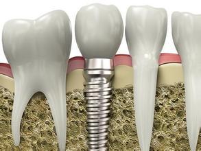 张家口种牙门诊
