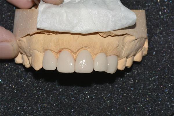 牙齿美学修复