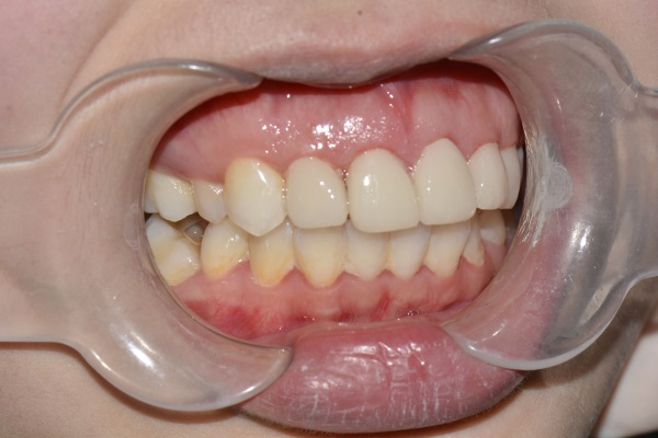 牙齿修复案例