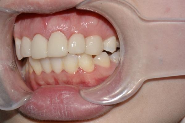 张家口牙齿美学修复