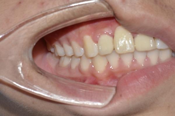 牙齿正畸案例
