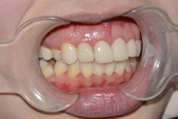 张家口牙齿修复