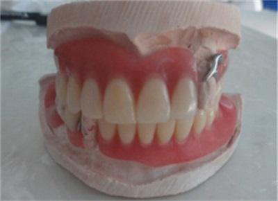 张家口义齿修复