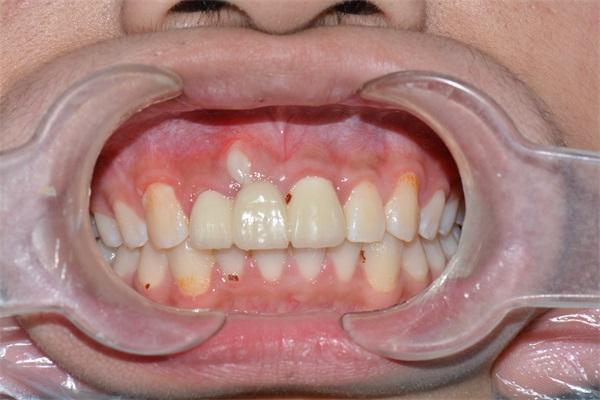 张家口牙齿正畸