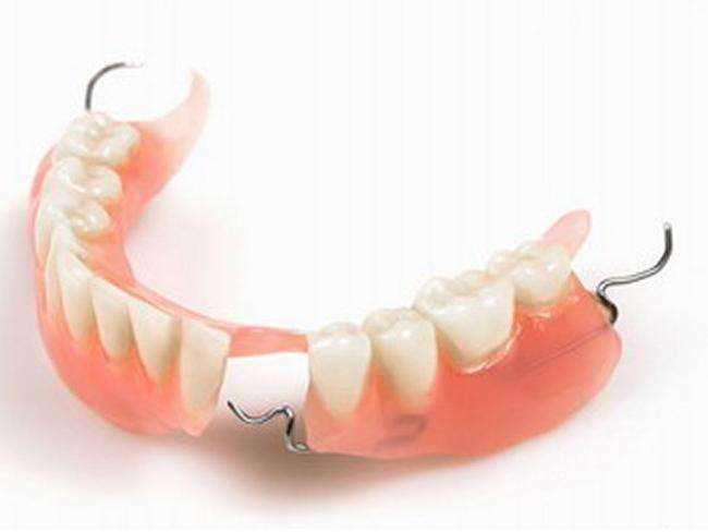 张家口牙齿修复门诊